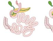 Metabole en vasculaire effecten van bariatrische chirurgie