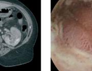 Polyarteriitis nodosa, necrotiserende vasculitis van middelgrote arteriën