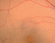Visusverlies door centrale retinale veneuze occlusie (CRVO)