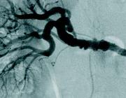 Tortueuze coronairarteriën: een aanwijzing voor fibromusculaire dysplasie?