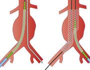 Het aneurysma van de abdominale aorta