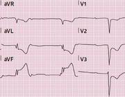 Het myocardinfarct