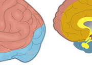 Endovasculaire behandeling bij het acute herseninfarct