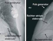 Cardiale resynchronisatietherapie