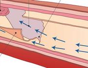 Spontane dissectie van een coronairarterie bij fibromusculaire dysplasie