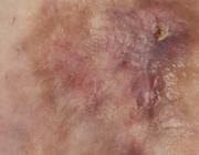 Casuïstiek rondom het antifosfolipidesyndroom