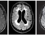 Cognitief falen bij hypertensie