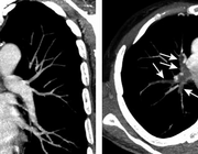 Ontwikkelingen in de diagnostiek en behandeling van de acute longembolie