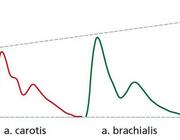 Meting van de centrale bloeddruk - van toegevoegde waarde?
