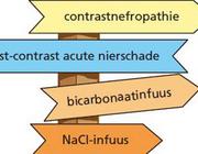 Preventieve hydratie bij intravasculaire toediening van jodiumhoudende contrastmiddelen