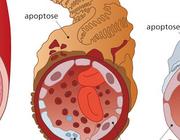 Vaatlijden en cardiale autonome neuropathie bij type 1 diabetes mellitus
