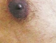 Ziekte van Mondor
