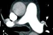 Chronische trombo-embolische pulmonale hypertensie