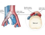 Linkszijdige diepe veneuze trombose door het iliocavaal compressiesyndroom