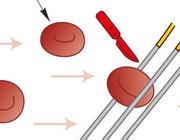 Trombotische microangiopathie