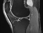 Vena poplitea aneurysma: to treat or not to treat?