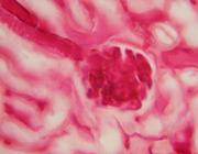 Chronische nierschade op basis van nefrosclerose