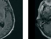 Focale hersenischemie als eerste uiting van eosinofiele granulomatose met polyangiitis