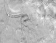 Percutane transluminale angioplastiek bij atherosclerotische arteriarenalisstenose
