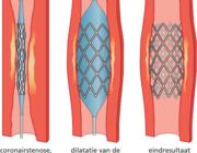 Myocardiale revascularisatie
