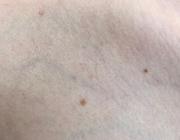 Armvenentrombose