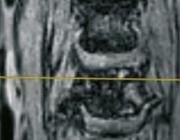 Een kwetsbare plaque in de arteria carotis interna