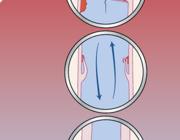 Ontwikkelingen in de preventie en behandeling van cardiale infecties