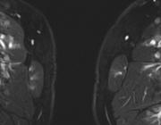 Perivasculair oedeem op de MRI bij polyarteriitis nodosa