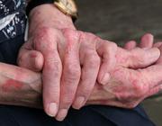 Is arthritis psoriatica een echt nieuwe cardiovasculaire risicofactor?
