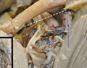 Primaire diepveneuze trombose van de bovenste extremiteit
