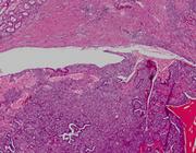 Reninoom: een behandelbare oorzaak van hypertensie met hypokaliëmie