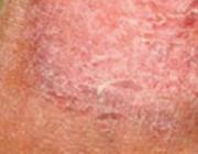 Pseudocellulitiden bij chronische veneuze insufficiëntie