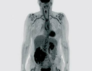 De waarde van de PET-CT bij de diagnose reuscelarteriitis