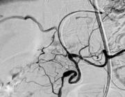Segmentele arteriële mediolyse