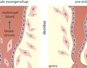 Behandeling van hypertensie tijdens en na de zwangerschap