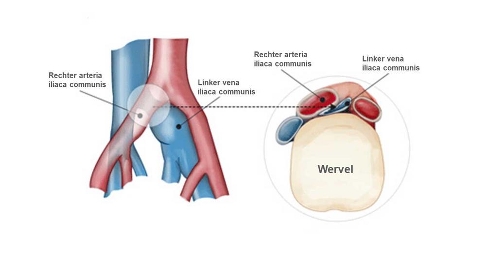 Linkszijdige diepe veneuze trombose door het iliocavaal ...
